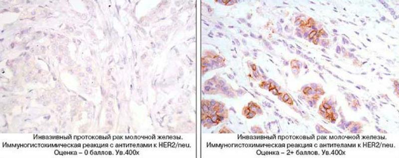 Инвазивный протоковый рак молочной железы