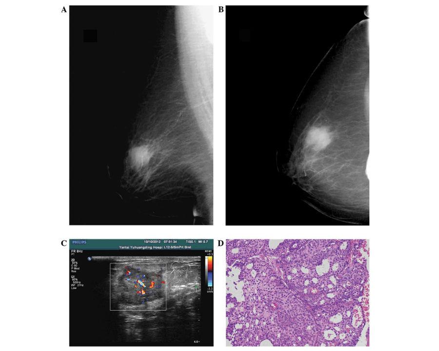 Результаты косой и аксиальной маммографии инвазивной крибриформной карциномы