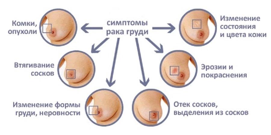 Симптомы метапластического рака груди
