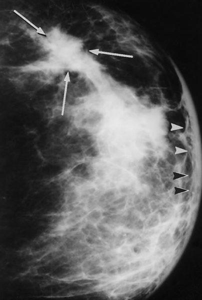 Фото 1. Воспалительная карцинома молочной железы