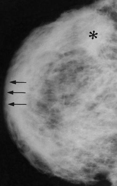 Фото 2. Воспалительная карцинома молочной железы