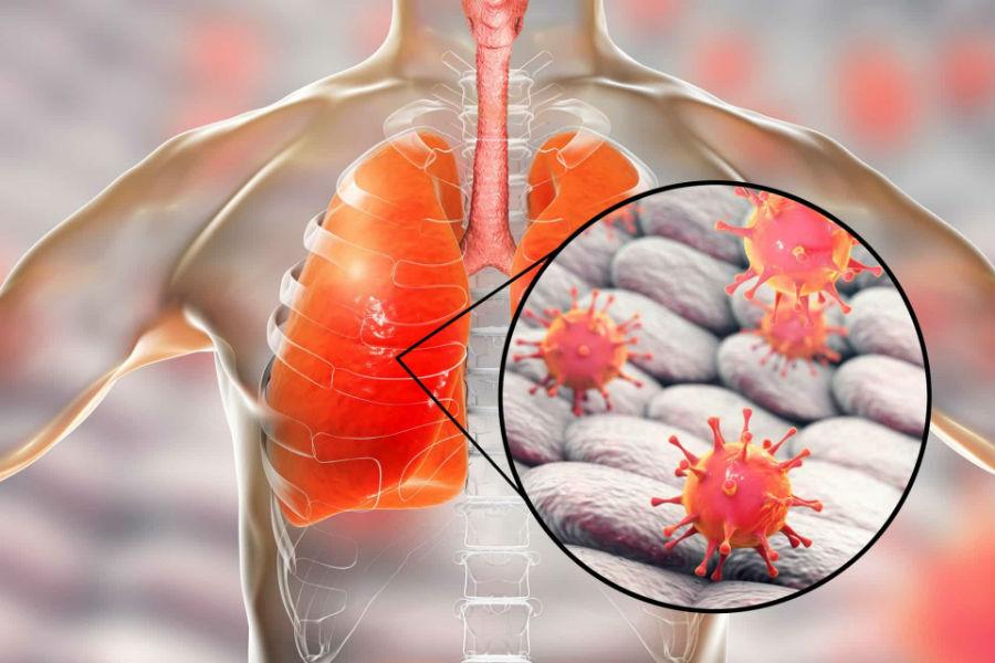 Коронавирус: патофизиология, механизмы пневмонии, вызванной SARS-CoV-2. Часть 2