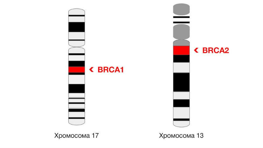 Локализация генов BRCA в хромосомах