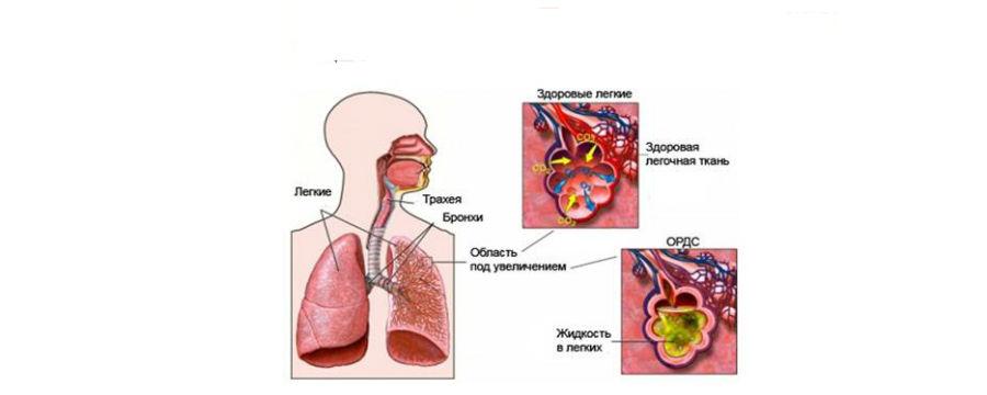 Острый респираторный дистресс-синдром