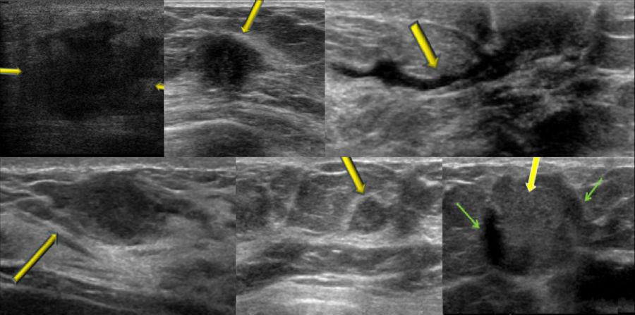 Шесть случаев секреторного рака молочной железы на УЗИ