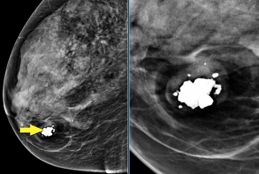 Гамартома молочной железы на маммографии