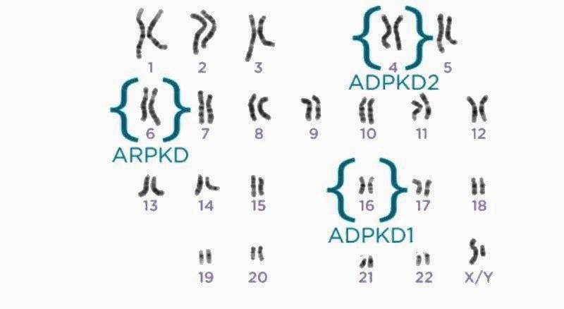 Мутация гена ADPKD1 или гена ADPKD2