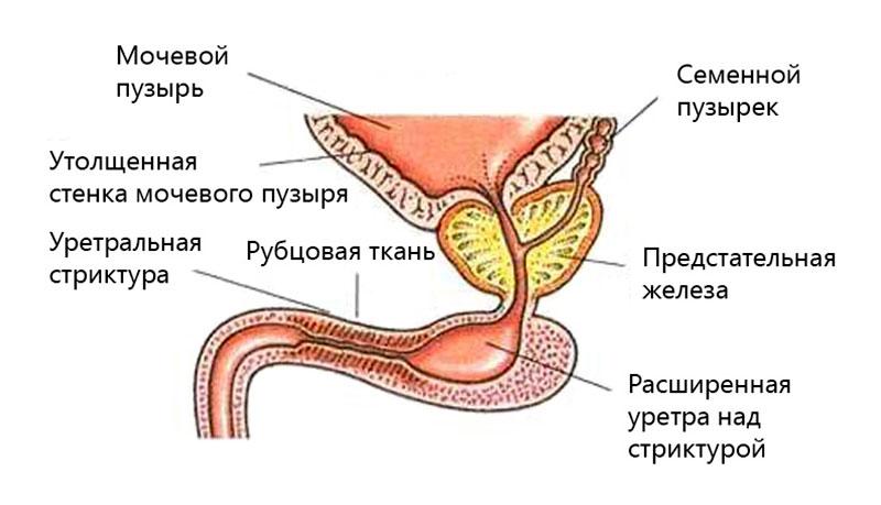 Стриктура уретры - схема
