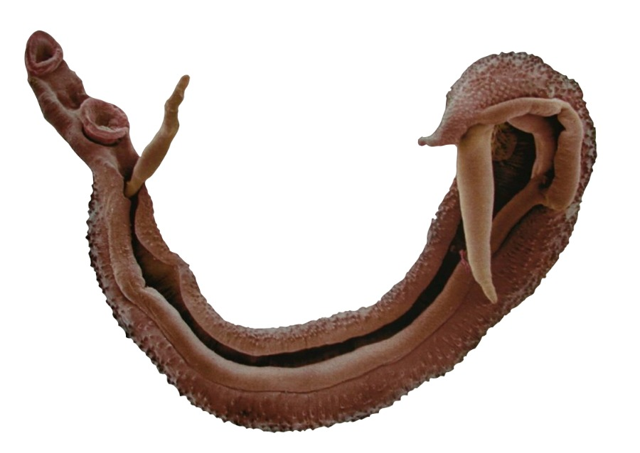 Schistosoma haematobium - трематода рода Schistosoma