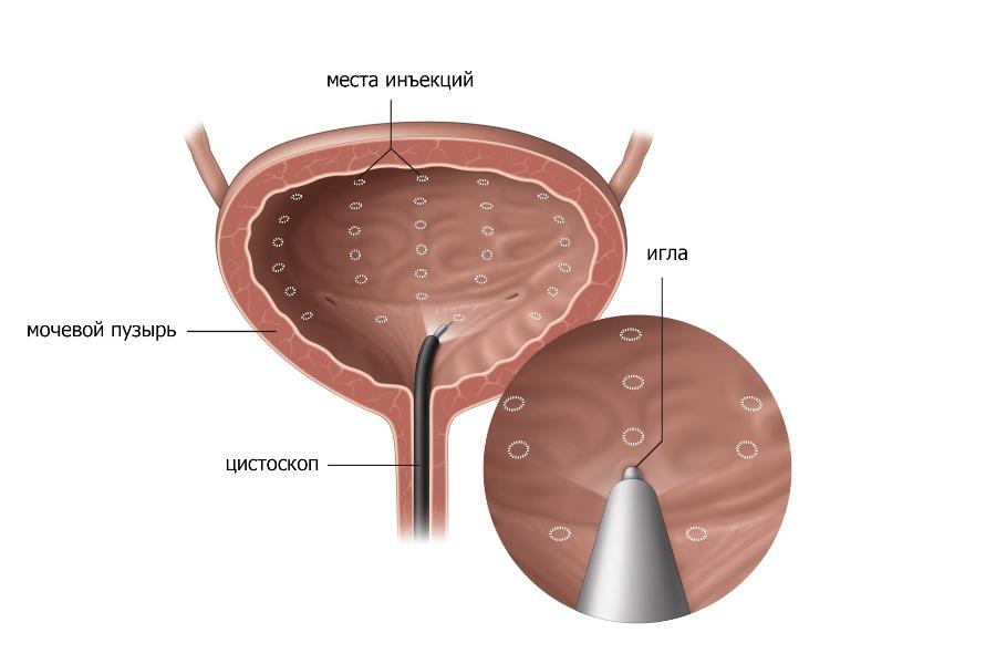Внутридетрузорные инъекции ботулинического токсина A