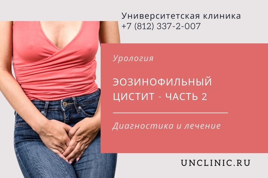Диагностика и лечение эозинофильного цистита