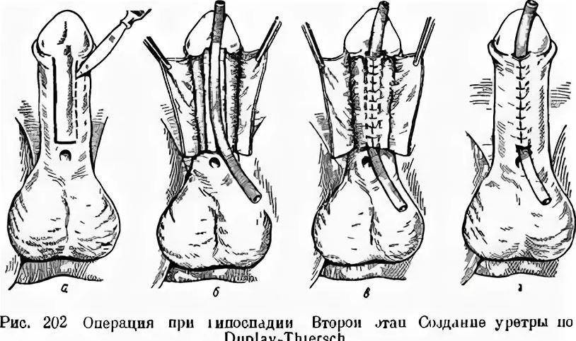 Операция при гипоспадии