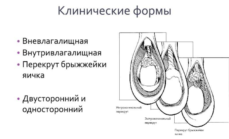 Формы перекрута яичка
