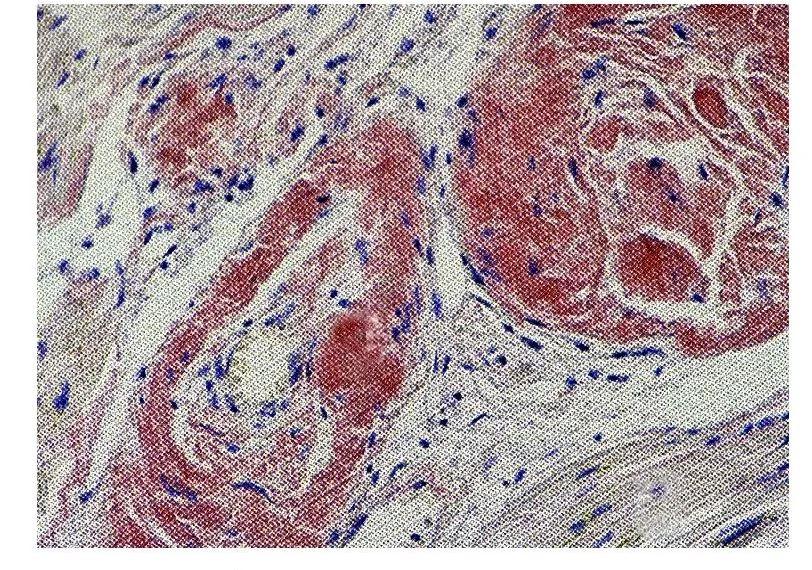 Амилоидоз миокарда