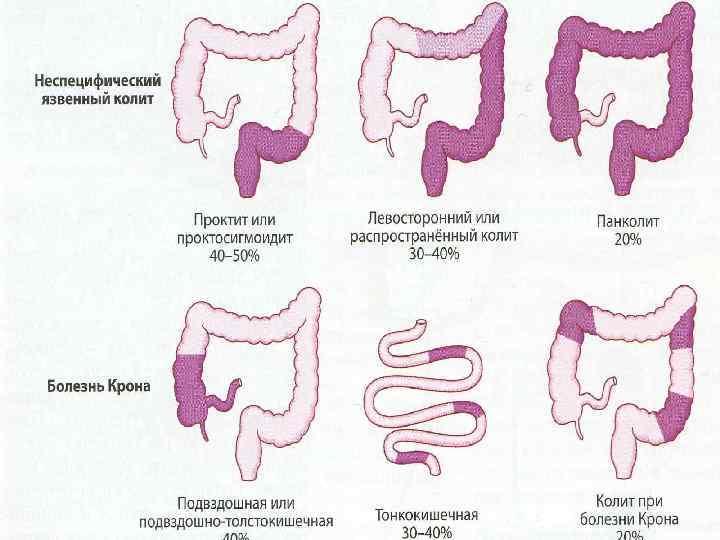 Дифференциальная диагностика проктита