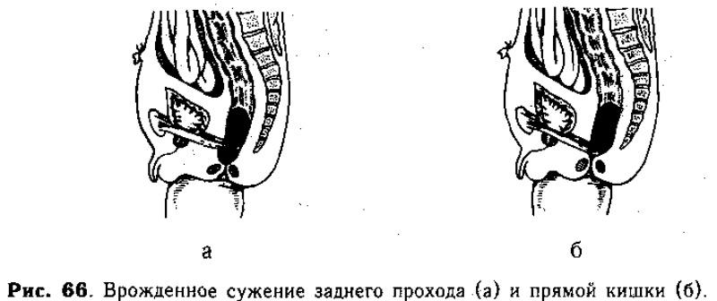 Стеноз прямой кишки