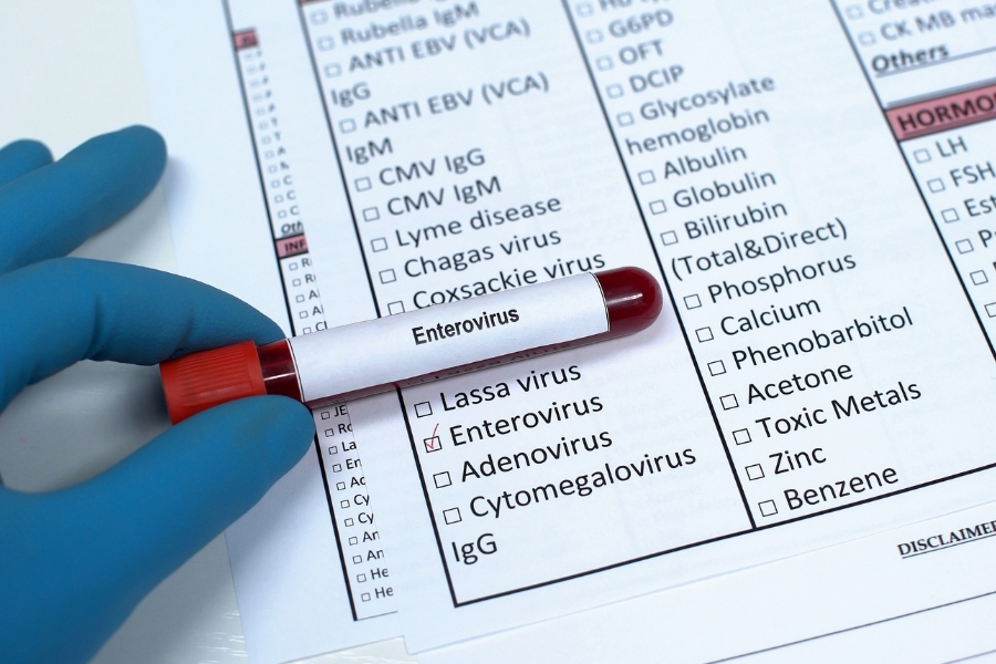 Диагностика энтеровирусов