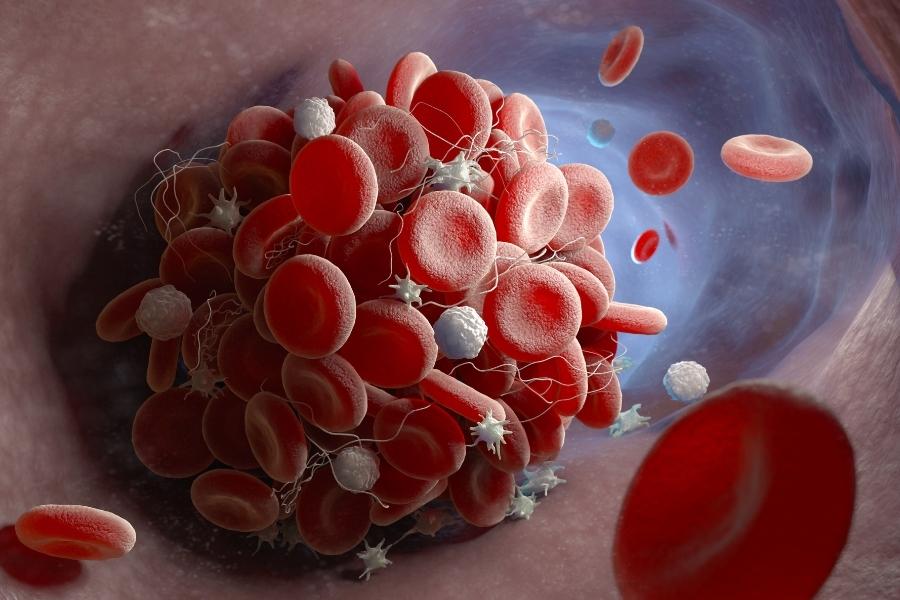 Гемостаз и D-димер