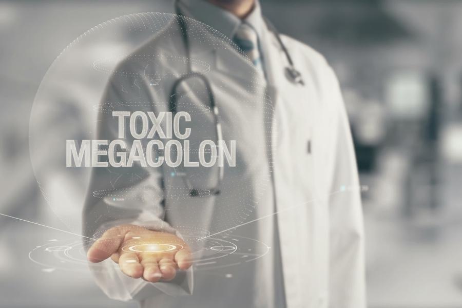 Общие сведения о токсическом мегаколоне